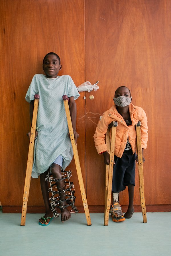 Weru and Mada come from the same village and both share similar leg conditions.