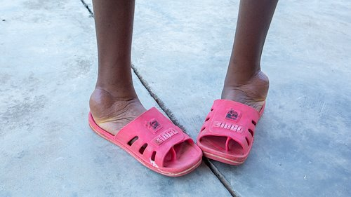 Plastic sandals provide temporary relief to kids that walk with severe clubfeet.