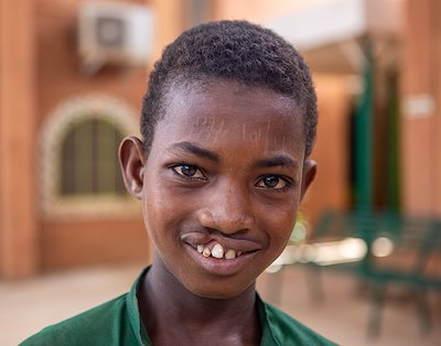 Garba's lived with a cleft-lip for fifteen years, and he is anxious for surgery.