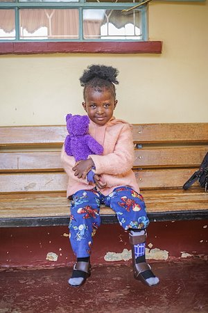 Elvin came to receive her Ankle Foot Orthosis to help her walk.