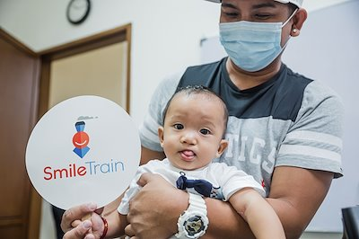 Kobe's cleft lip is healed! Thanks to our partners from Smile Train!